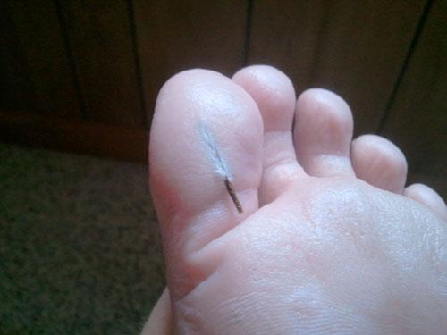 huge splinter